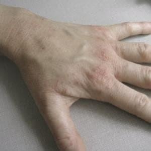 Крапивница на руках