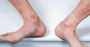 Дерматит на ногах у ребенка