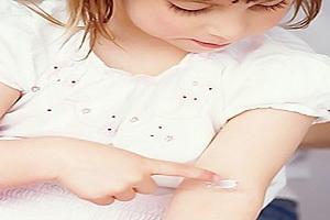 Чем снять зуд у ребенка
