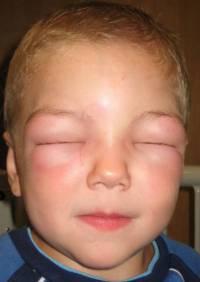 Чем помазать аллергию на лице у грудничка