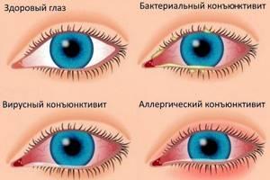 Сильно чешутся глаза