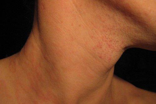 Покраснение и зуд кожи шеи