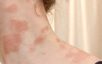 Чем мазать аллергическую сыпь у взрослых