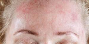Аллергия на холодную воду