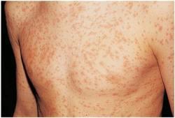 Аллергия на индейку