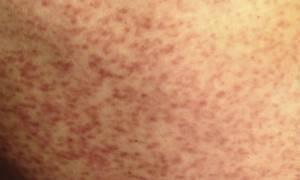 Лечение лекарственной аллергии у взрослых