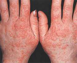 Как лечить холодовую аллергию