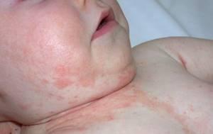 Атопический дерматит у грудничка лечение комаровский