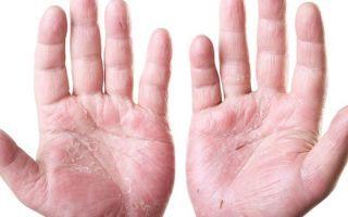 Мазь от контактного дерматита на руках