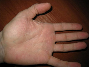 Средство от аллергии на руках