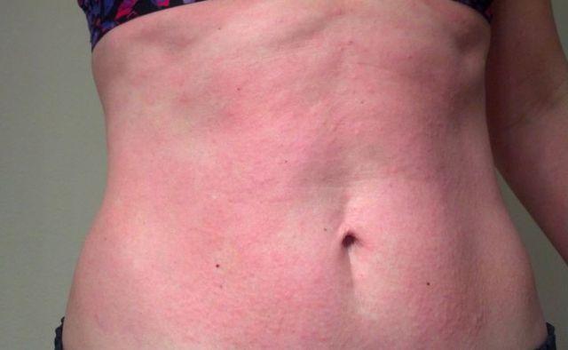 Аллергия на пот лечение