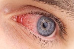 Капли в глаза при аллергии