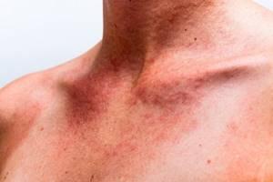 Солнечная аллергия симптомы и лечение
