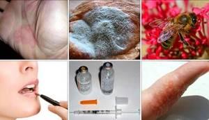 Классификация аллергенов