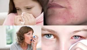 Перекрестная аллергия с березой