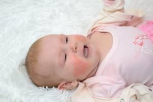 Полисорб грудничку при аллергии