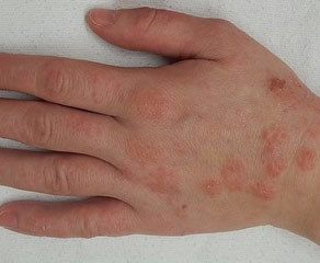 После аллергии остались пятна темные