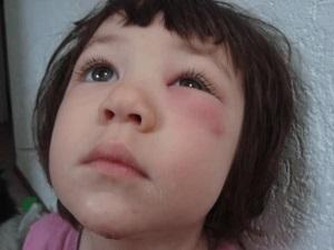 Аллергия на белок яйца у ребенка