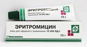 Мазь от аллергических высыпаний