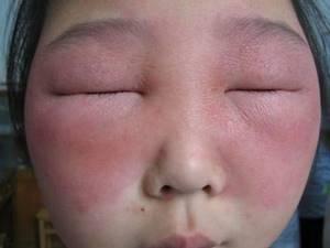 Опухло лицо от аллергии что делать