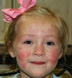 Чем лечат крапивницу у детей