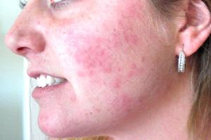 Аллергическая сыпь на лице у взрослого лечение
