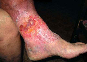 Эффективные мази от экземы на ногах