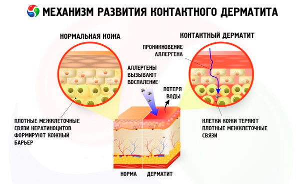 Антигистаминные капли