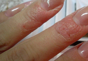 Аллергия на гель лак блюскай