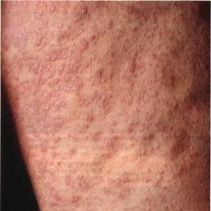Как быстро избавиться от аллергической сыпи