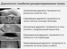Дерматит симптомы у взрослых