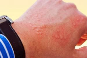 Раздражение от лейкопластыря чем лечить