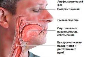 Сыпь на антибиотики у ребенка