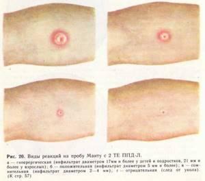 Манту при аллергии