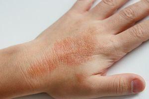 Баклажан аллерген или нет