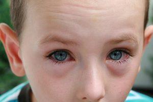 Антигистаминные глазные капли для детей