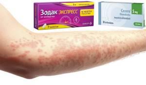 Препараты 3 поколения от аллергии
