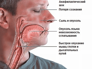 Аллергический шок первая помощь