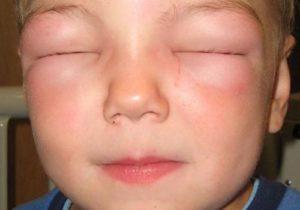 Отек квинке симптомы у ребенка