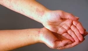 Аллергия на макароны у ребенка