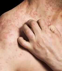 Как выглядит аллергическая сыпь