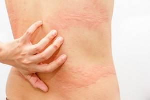Кожный аллергический зуд лечение