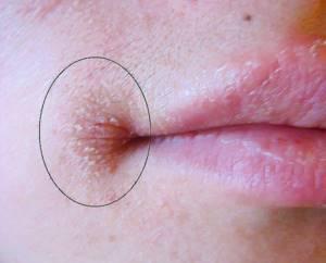 Аллергия на помаду лечение