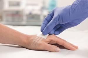Лейкопластырь после операции