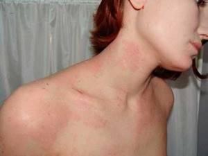 Бывает ли аллергия на сфинксов