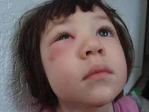 Аллергический отек век