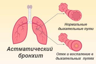 Аллергия на цементную пыль симптомы