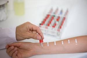 Скарификационные пробы на аллергию