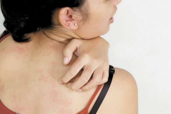 Дипроспан уколы инструкция по применению от аллергии