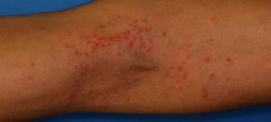Аллергия у ребенка на чернослив